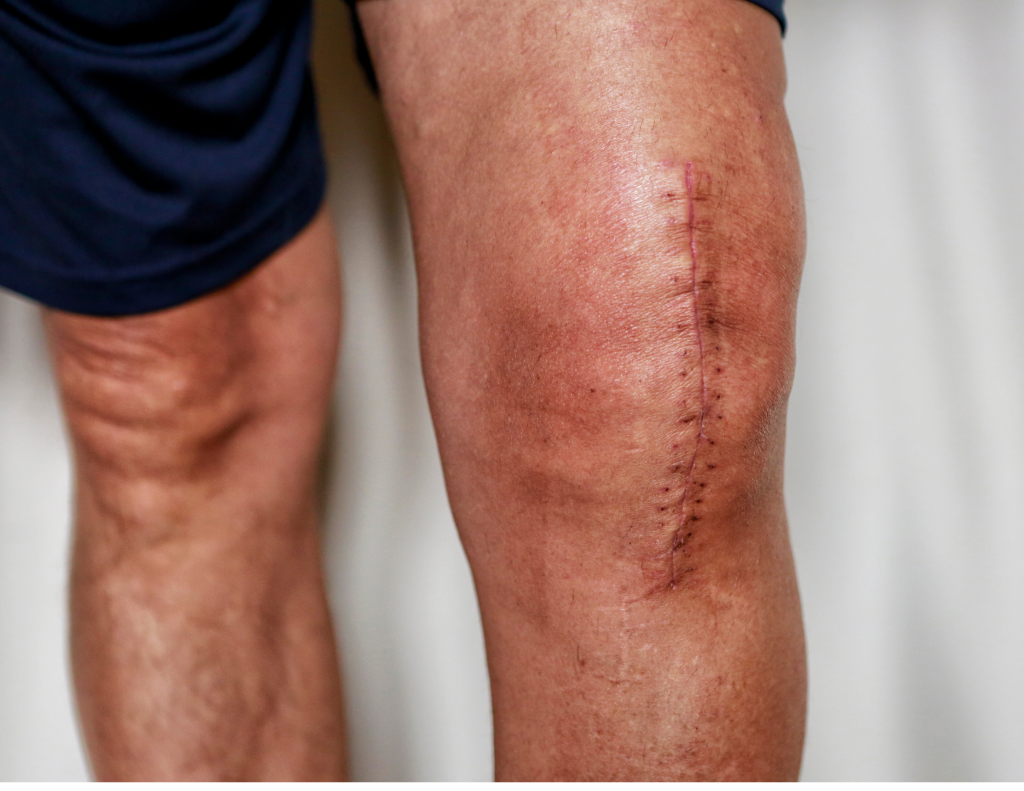 Scarring Meets the Threshold Under the Insurance Act   McLeish Orlando Personal Injury Lawyers