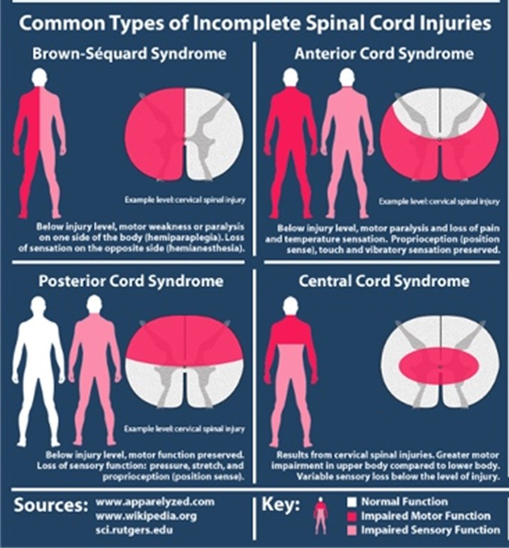 Common types of incomplete spinal cord injuries